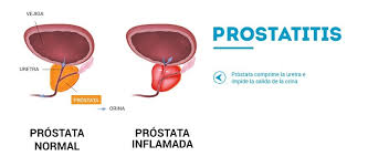 VIDEO SOBRE LA PROSTATITIS